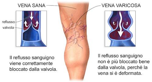Trombosi di sintomi di vene epatici