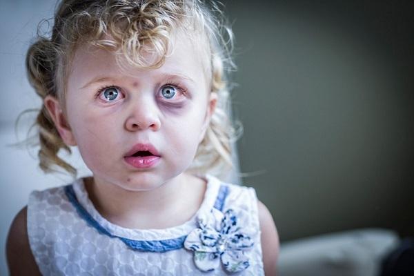 abuso su minori testimonianza